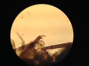 Springtail claw under high power magnification.