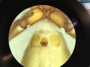 Examining an epigyne under a microscope.  C Bell